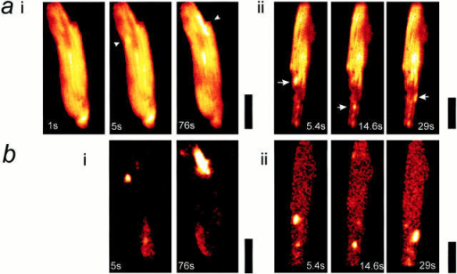 Localized transient depolarization of Δψm.  a, i and ii, shows a selection  of images extracted from image series obtained from two  cells over a period of ∼60 s  and illustrates the transient  localized depolarizations of  mitochondria or groups of  mitochondria throughout the  cell with time. Each arrowhead points to a region of the  image that shows a marked  transient increase in intensity, and the times of the individual images are indicated.  In b, i and ii, the differential images corresponding to  those selected in a, i and ii,  are shown, revealing the distribution over which the signal has changed between  image frames. The black calibration bars to the right of  each group of images represent 20 μm. The traces below  (c) illustrate the change in intensity with time for events  identified in each of four  cells. In each case, an area or  areas of just a few pixels  were selected to limit the collection of signal to a small  volume of the cell. In c, i,  three widely separated areas  within a cell were chosen,  over which single events occurred during the sampling  period. The record in ii  shows a single brief event  highly localized to a small  part of a cell superimposed  on a very quiet baseline. In  iii, an example has been  selected in which several  events occurred repeatedly  at a single point within the  acquisition period, and in iv,  FCCP was applied at the end  of the acquisition time to  demonstrate the full range of  TMRE signal with complete  dissipation of the mitochondrial potential in comparison  with the small transient event  that preceded it.