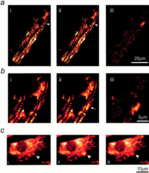 Resolution of transient depolarizations to single mitochondria. In a, a confocal image of an adult  myocyte reveals the organization of mitochondria in  longitudinal bands. A single  mitochondrion showed a  transient increase in intensity, and the differential image is shown in iii. b shows an  increased magnification of  the area of the cell for the  three images shown above.  In c, a series of images has  been extracted from a sequence obtained from the  neonatal myocytes in culture  to illustrate the occurrence of  transient events restricted to  single identifiable mitochondria (arrows).