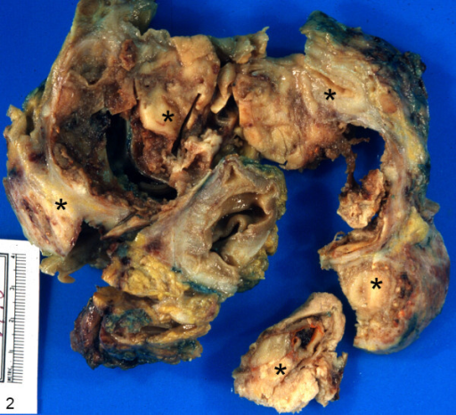 Gross photograph of the specimen composed of colonic segment containing a predominantly serosal based neoplastic lesion measuring 12.0 × 12.0 × 12.0 cm in maximum dimensions (asterisks).