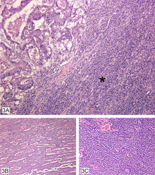 A, B, C – Colonic adenocarcinoma colliding with granulosa cell tumor (3A) showing many architectural patterns including diffuse (3A) (asterisk), microfollicular (3B) and cords of cells (3C).