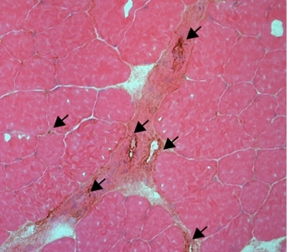 Androgen treatment repaired (arrows) damaged vessels in castrated mice.