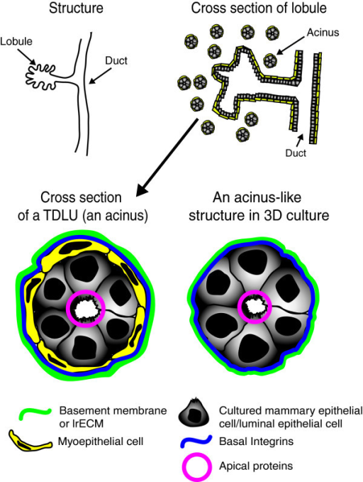 Architecture and morphology of the mammary gland. (a) A cartoon representation of the structure of the epithelial tissue of the human mammary gland indicating a large duct branching into a lobule. (b) A representation of a cross section cut through the bilayered epithelia: many bilaryered acini that are part of the lobule would be apparent yet their direct connection to the lobule 'disappears' in the 2D cross section. (c) A magnified cross section of the terminal ductal lobular unit (TDLU) referred to as an acinus. Acinar polarity is demonstrated where apical proteins face the lumen formed by luminal epithelial cells and the basement membrane (BM) is in contact with myoepithelial cells (d) S1 cultured cells form a single layered acinus-like structure in 3D culture with apico-basal polarity despite the lack of the myoepithelial layer.