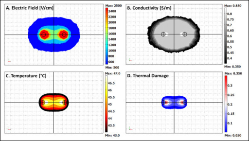 Electric field, conductivity, temperature and thermal damage distributions at the conclusion of an 80 s IRE treatment simulation. A model of eighty 50 μs pulses with an applied voltage of 1000 V at a repetition rate of 1 Hz is presented. The grid resolution in the distributions is 1.0 mm. For this specific simulation, the tissue was treated only with IRE since thermal damage occurs when Ω > 0.53.