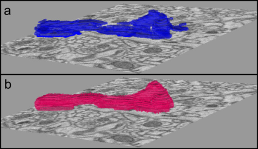 Smoothing effect of Step 3. (a) Stack of output contours representing one mitochondria from step 2 using data from Test 1. Contours are rendered as solid slabs. (b) Output of step 3. Notice that the level set operation yields a result that is smoothed. (The slice view for (a) and (b) is 3.5 μm × 3.5 μm in size.)