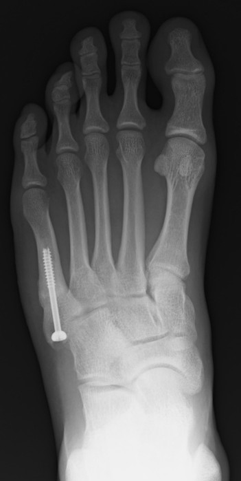 X-ray images from four directions to confirm bone union. Anteroposterior radiograph.