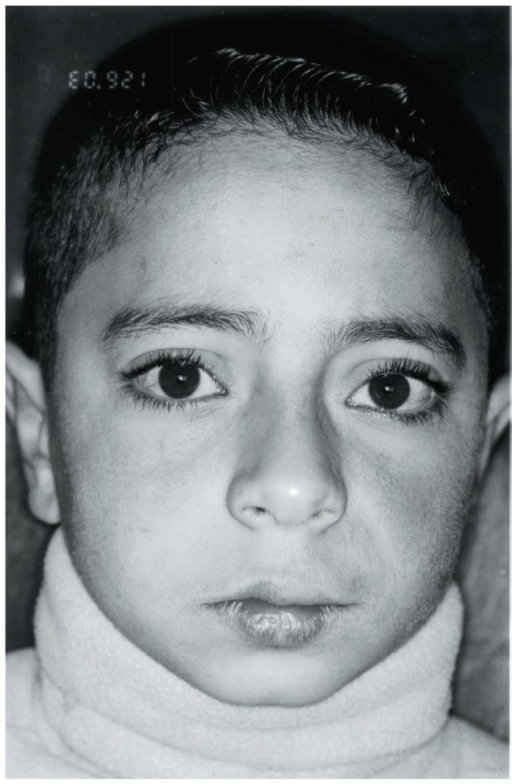 Frontal facial view of the patient with facial asymmetry and rough erythema involving left midface. Note hypopigmentation of upper lip and loss of vermilion border.