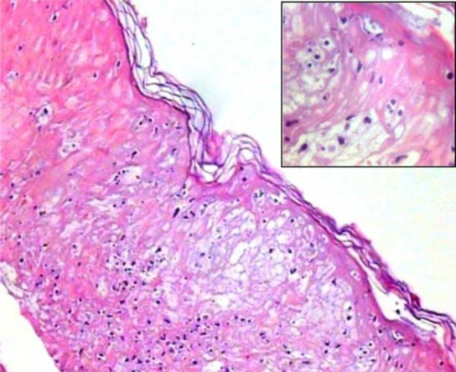 Light microscopy with necrotic epidermis (x 100), inset with detail of the vesicleformation with intraepidermal lymphocytes (x 400).