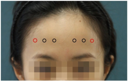 Proposed injection points of BoNT-A on the frontalis mu | Open-i