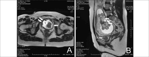 T2-weighted MRI image of bladder tumor (arrow), A – axial and B – sagittal planes; the pedicle invades the bladder neck without crossing its whole thickness. The Foley catheter (double arrow) and fetus (triple arrow) can also be seen.
