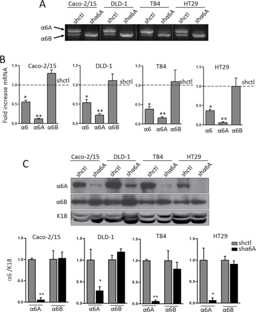 Knockdown of the α6A subunit in human CRC cells. (A) Representative gel showing the results of a competitive reverse transcription–polymerase chain reaction for the detection of α6A and α6B transcripts in stably expressing shctl and shα6A Caco-2/15, DLD-1, T84 and HT29 cells. (B) qPCR using probes specific for total α6, α6A and α6B confirming the specificity of abolition of α6A variant expression by shα6A relative to shctrl; *P ≤ 0.05, **P ≤ 0.01, ANOVA, n = 3. (C) Representative WB for detection of α6A and α6B subunits in shctl- and shα6A-infected Caco-2/15, DLD-1, T84 and HT29 cells. Keratin 18 (K18) was used as loading control. Densiometric analysis of α6A and α6B protein levels in shctl- versus shα6A-infected cell populations; *P ≤ 0.05, **P ≤ 0.01, t-test, n = 3.