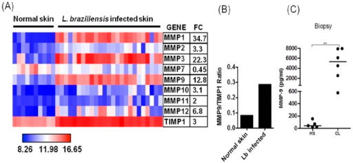 Lesions of CL patients produce MMP-9.A, Heatmap showing expression of MMPs and TIMP-1 from microarray profile. Biopsies from CL patients (n = 26) and normal skin (n = 10) were obtained and unbiased microarray was performed on biopsies mRNA. Average fold change (FC) for each gene in lesion samples relative to normal skin controls is shown. B, Ratio between MMP-9 and TIMP-1 genes expression. Biopsies from CL patients (n = 26) and normal skin (n = 10) were obtained and unbiased microarray was performed on biopsies mRNA. C, MMP-9 levels in biopsies culture supernatants from CL patients (n = 6) and healthy subjects (HS) (n = 5), determined by ELISA after the biopsies been cultured for 12 h in absence of stimuli. **p<0.005.