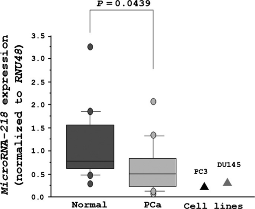 The expression levels of miR-218 in clinical specimens and prostate cancer (PCa) cell lines (PC3 and DU145). Real-time PCR showed that the expression levels of miR-218 were significantly lower in PCa tissues and cell lines than in normal prostate tissues. RNU48 was used as an internal control.