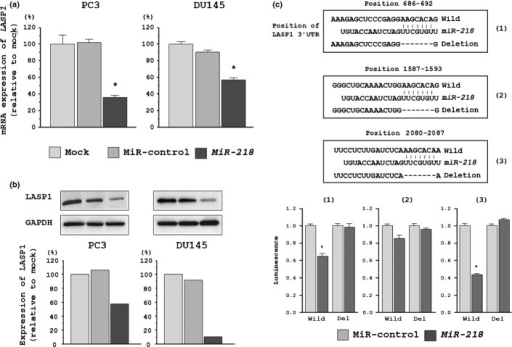 LASP1 expression was suppressed by miR-218 transfection of prostate cancer (PCa) cells. (a) LASP1 mRNA expression 72 h after transfection with miR-218. GUSB expression was used for normalization. (b) LASP1 protein expression 72 h after transfection with miR-218. GAPDH was used as a loading control. (c) miR-218 binding sites in the 3′-UTR of LASP1 mRNA. Luciferase reporter assays using three vectors encoding putative miR-218 target sites at positions 686–692, 1587–1593 and 2080–2087 for both wild-type and deletion (Del). Renilla luciferase values were normalized to firefly luciferase values, *P < 0.001.