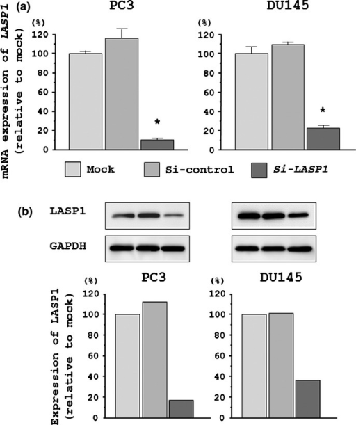 LASP1 mRNA and LASP1 protein expression levels were suppressed by si-LASP1 transfection of DU145 and PC3 cells. (a) LASP1 mRNA expression 72 h after transfection with si-LASP1. GUSB expression was used for normalization. (b) LASP1 protein expression 72 h after transfection with si-LASP1. GAPDH was used as a loading control. The ratio of LASP1/GAPDH expression was evaluated using ImageJ software (ver. 1.43; http://rsbweb.nih.gov/ij/index.html).