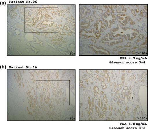 Immunohistochemical staining of LASP1 in prostate clinical specimens. Differences in LASP1 expression were observed in cancer lesions and adjacent normal prostate tissues in the same fields: (a) patient number 6; and (b) patient number 16. Overexpression of LASP1 was observed in cancer lesions. In contrast, negative staining of LASP1 in normal prostate glands and stromal tissues (left panel, original magnification ×50; right panel, original magnification ×100).