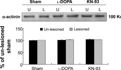 Effects of l-DOPA and KN-93 on α-actinin expressions in the rat striatum.Notes: A representative immunoblot is shown above the quantification. There was no significant change in the lesioned striatum compared to the unlesioned striatum in all groups. Data are expressed in terms of means±SEMs (n=6 per group).Abbreviations:l-DOPA, l-3,4-dihydroxyphenylalanine; KN-93, N-[2-[[[3-(4-chloro-phenyl)-2-propenyl]methylamino]methyl]phenyl]-N-(2-hydroxyethyl)-4-methoxybenzenesulfonamide; U, un-lesioned; L, lesioned; SEM, standard error of the mean.
