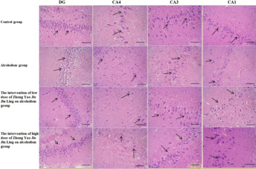 Hematoxylin-eosin (HE) staining of the dentate gyrus (DG) and hippocampus(CA4, CA3, and CA1) in the four groups (bars: 100 mm). The arrows indicateneurons.