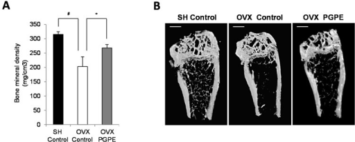 Effect of ovariectomy and pomegranate peel extract consumption for 30 days on bone parameters in mice. (A) Bone mineral density analysis of left femur by X-ray radiation micro-CT. Mice were sham-operated, SH or ovariectomized, OVX and fed standard diet AIN-93 (Control) or standard diet enriched with 2g/kg of pomegranate peel extract, PGPE representing a dose of 10 mg polyphenols/kg body weight/day (ellagic acid equivalent) for 30 days. Each group contained 10 mice. Results are presented as means ± standard error of the mean, SEM. # p < 0.005 OVX Control versus SH Control group. * p < 0.05 OVX PGPE versus OVX Control. (B) Representative microCT images of the distal left femur for each group: SH Control, OVX Control and OVX PGPE. Scale bars, 1 mm.