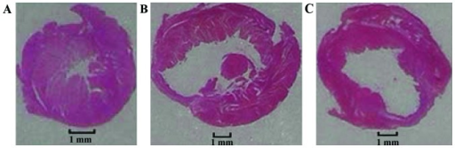 Representative left ventricle cross-section with hematoxylin and eosin staining of 28 days post-myocardial infarction (MI). (A) Sham, (B) MI and (C) Qili qiangxin groups.