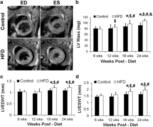 a Example black-blood cine images in the control and HFD mice at end-diastole and end-systole at 18 weeks post-diet. b LV mass measurements in the control and HFD mice at 6–24 weeks post-diet (*p < 0.05 vs. age-matched control, $p < 0.05 vs. HFD at 6 weeks, #p < 0.05 vs. HFD at 12 weeks, &p < 0.05 vs. HFD at 18 weeks). c LV end-diastolic wall thickness (LVEDWT) measurements in the control and HFD mice at 6–24 weeks post-diet (*p < 0.05 vs. age-matched control, $p < 0.05 vs. HFD at 6 weeks, #p < 0.05 vs. HFD at 12 weeks). d LV end-systolic wall thickness (LVESWT) measurements in the control and HFD mice at 6–24 weeks post-diet (*p < 0.05 vs. age-matched control, $p < 0.05 vs. HFD at 6 weeks, #p < 0.05 vs. HFD at 12 weeks)