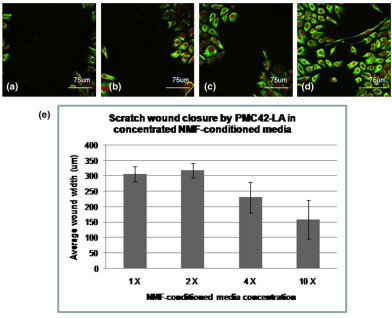 The effect of concentrated NMF-conditioned media on two-dimensional scratch wound closure. PMC42-LA cells were cultured on glass in 1×, 2×, 4×, or 10× NMF-conditioned medium. Using scratch tests, PMC42-LA cells were analyzed for the extent of wound closure 24 hours after scratch. Scratches were measured and averaged, and the extent of wound closure calculated and averaged. (a) Cells in 1× NMF-conditioned media (control) had average wound sizes of 307 ± 24.3 μm 24 hours post-scratch. (b) Cells in 2× NMF-conditioned medium had average wound sizes of 319 ± 23.2 μm 24 hours post-scratch. (c) Cells in 4× NMF-conditioned medium had average wound widths of 232 ± 49.7 μm 24 hours post-scratch, and (d) cells in 10× NMF-conditioned medium had average wound widths of 160 ± 62.4 μm 24 hours post-scratch. Vimentin localization appeared unchanged in all cultures; some change in cell morphology was noted in 10× NMF-conditioned media cultures. CAF, cancer-associated fibroblast; NMF, normal mammary fibroblast.