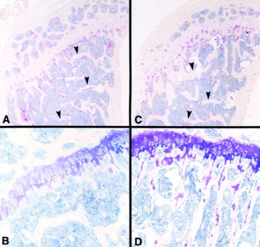 Histomorphometric analysis of proximal tibial sections of Gsn−/− and Gsn+/+ mice. Proximal tibial sections of bone isolated from 14-wk-old Gsn+/+ (A and B) and Gsn−/− (C and D) mice were stained for TRAP (A and C) or with toluidine blue (B and D). (A and C) TRAP staining. Numerous osteoclasts were visible in the primary spongiosa and on the surfaces of metaphyseal trabeculae in both +/+ (A) and −/− mice (C). The number of TRAP-positive osteoclasts below the growth plate in −/− mice tends to be increased, giving the appearance of a double row of cells as the trabeculae develop from the primary spongiosa (C). The trabecular bone volume in the metaphysis of the −/− mice was increased (shown by arrows; compare A and C; see Table ). (B and D) Toluidine blue staining. The metaphyseal trabeculae of −/− mice (D) had retained cartilage-derived proteoglycan.