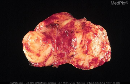 Deep surface of resected tumor showing the relatively smooth lobulated surface that was not adherent to the underlying brain.