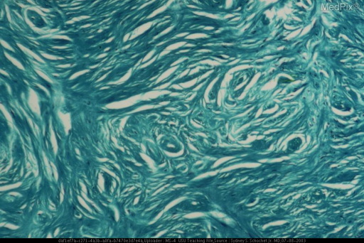 Trichrome stained section showing dark green staining reflecting the abundance of collagen.