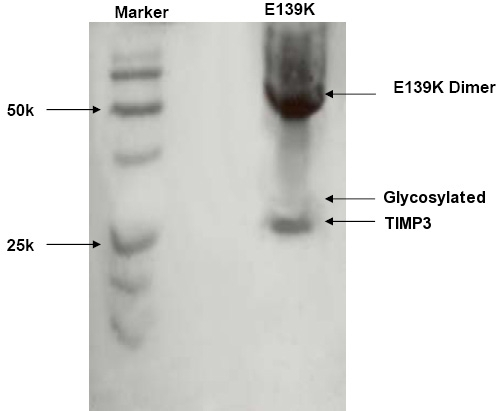 Western Blot of E139K TIMP-3 mutant. TIMP3 immunoblot (western blot) of the extracellular matrix sample from ARPE-19 cells transfected with E139K TIMP-3 expression plasmid, in nonreduced form demonstrating dimerization.