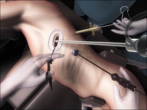 Port placement for left side vats lobectomy thoracoscope is