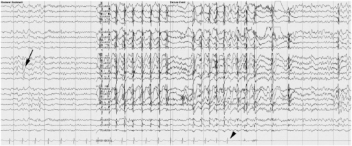 Electroencephalogram and electrocardiogram. Electroencephalogram showed rhythmic theta activity and sharp waves in the T3 area (arrow) at first, and then generalized rhythmic theta activity. Asystole started 22 seconds after seizure attack, as shown in the electrocardiogram channel (arrow head).