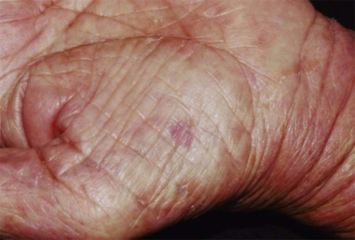 Reddish, nummular and depressed lesion, located on the thenar eminence of the leftpalm (Case 2)