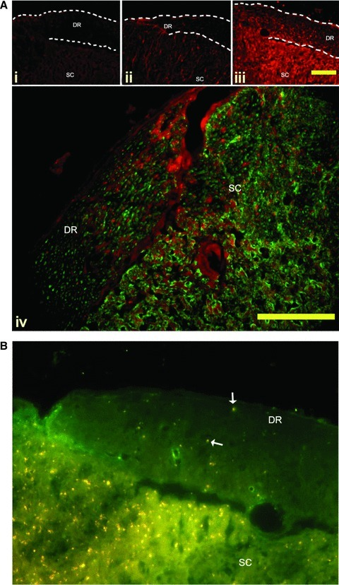 (A) BDNF immunoreactivity in the dorsal roots. Representative sections of dorsal root entry zones from the lumbar spinal cord of Lewis rats induced to a state of EAE. A marked increase in BDNF immunoreactivity (red) is seen in the dorsal roots of active EAE compared to active control animals and NC animals. Panel i—Naïve animals have no BDNF immunoreactivity in the dorsal roots (DR). Panel ii—Active control animals have noticeable BDNF immunoreactivity in the satellite cells of the DR, and in the grey matter of the dorsal horn. Panel iii—Active EAE animals appear to have increased levels of BDNF immunoreactivity in the satellite cells of the DR, as identified as small brightly stained cell surrounding the axons of the root. In addition, there is a marked increase in punctuate staining in the length of the roots. Further, the grey matter of the dorsal horn has a markedly increased immunoreactivity compared to the active control animals. DR = Dorsal root; SC = spinal cord. Bar = 10 μm. Panel iv—BDNF expression (red) is associated with neurons (labelled with Neuron-specific class III beta-tubulin (Tuj1) – green) in both the DR, and the dorsal horn. Bar = 10 μm (B) Anterograde transport of BDNF along the dorsal root is mediated by kinesin. Double immunolabelling of frozen sections of EAE spinal cord shows BDNF (red) co-localized to the motor protein kinesin (green) (arrow). Kinesin is distributed throughout the dorsal root (DR) and spinal cord (SC). BDNF immunoreactivity is markedly higher in the dorsal root entry zone than the root. Co-labelling shows as yellow. Bar = 10 μm.