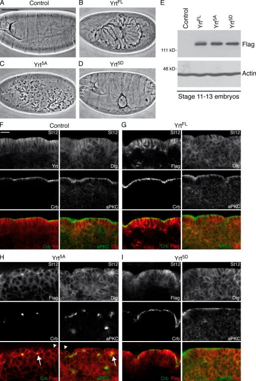aPKC-dependent phosphorylation of Yrt is crucial for epithelial cell polarity. (A–D) Cuticle preparation of embryos of the following genotypes: wild type (A), da-GAL4/UAS-Flag-yrtFL (ubiquitous expression of Flag-tagged YrtFL; B), da-GAL4/UAS-Flag-yrt5A (C), and da-GAL4/UAS-Flag-yrt5D (D). Bar, 100 µm (also applies to B–D). (E) Western blot using an anti-Flag antibody showing that all constructs were expressed at similar levels. Actin was used as a loading control. (F) Portion of the ventral ectoderm of control (da-GAL4; driver line used to express Yrt constructs, this line has a wild-type phenotype) stage 12 (St12) embryos costained with Yrt and Crb (left) or with Dlg and aPKC (right). (G–I) Left images show costaining of Flag and Crb, whereas right images depict costaining of Dlg and aPKC in the ectoderm of an embryo expressing Flag-tagged YrtFL (G), an embryo expressing Flag-Yrt5A (H), or an embryo expressing Flag-Yrt5D (I). Arrows in H point to cysts of cells with contracted apexes, whereas arrowheads show cells with reduced Crb and aPKC levels. Bar, 10 µm (also applies to G–I).