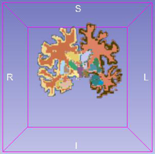 A slide of the segmented brain where the segmented regions have different colors.
