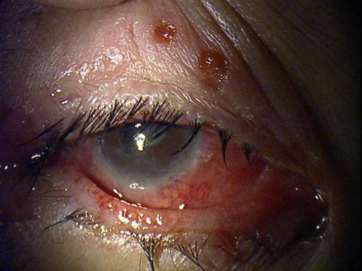 A photograph showing blepharitis with vesicles of the lid margin and conjunctival injection.