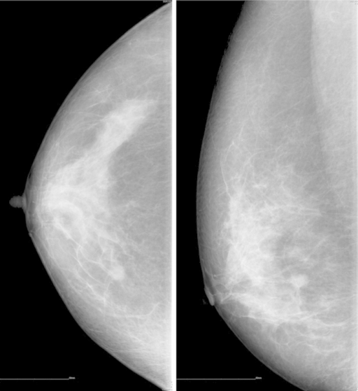 Mammography revealed two masses in the right breast.