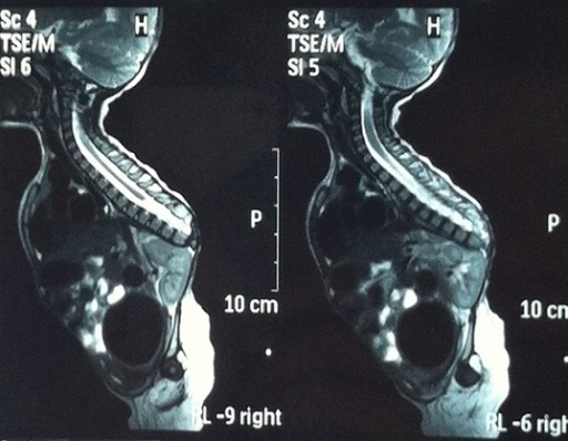 Spinal cord was observed to be terminated at T6 vertebr   Open-i