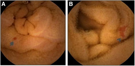 Capsule endoscopic findings of small bowel angioectasia. A: punctate angioectasia (arrow). B: patchy angioectasia (arrowhead).