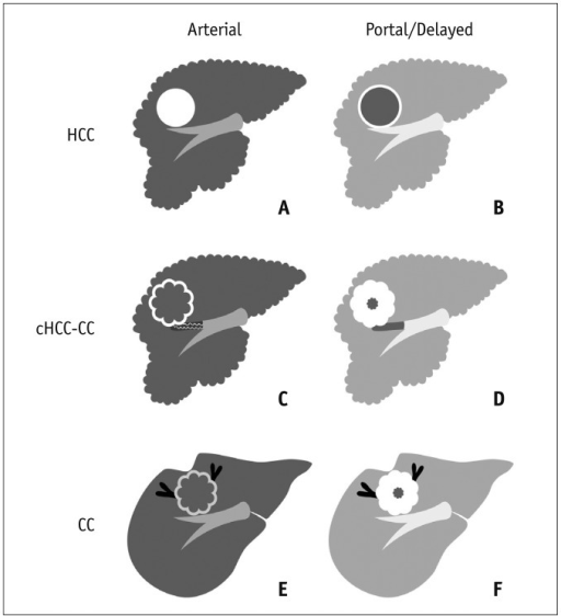 Schematic representation of imaging features of HCC, cHCC-CC, and CC.A, C, E. Arterial phase images. B, D, F. Portal and delayed phase images. A, B. HCC in cirrhotic liver shows arterial enhancement and delayed washout. Pseudocapsule shows delayed enhancement. C, D. cHCC-CC in cirrhotic liver shows strong arterial enhancement in peripheral portion of tumor and concentric filling on delayed phase. Note tumor thrombus in portal vein. E, F. CC in noncirrhotic liver shows weak arterial enhancement in peripheral portion of tumor and concentric filling on delayed phase. Note bile duct dilation and hepatic surface retraction. CC = cholangiocarcinoma, cHCC-CC = combined hepatocellular-cholangiocarcinoma, HCC = hepatocellular carcinoma