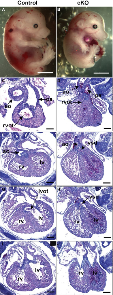 Temporally targeted inactivation of Hif‐1α causes aorta overriding VSD. Control (Hif‐1αf/f; β‐actinCre−) and cKO (Hif‐1αf/f; β‐actinCre+) E15.5 littermate embryos from a mouse injected with 3 mg of TM at E10.5. Embryos are shown in whole mount (A and B) and in sections (C through J) from anterior to posterior with respect to the heart. The cKO embryo (B) is smaller than control (A). In the cKO the RVOT appears narrowed by mesenchyme (arrowhead) and infundibular muscle (D), and the aorta overrides a VSD (F and H). J, More posteriorly the atrio‐ventricular valves appear normal while the ventricular myocardium is thinned. Scale bars: 500 μm. Ao indicates aorta; cKO, conditional knock‐out; Hif, hypoxia‐inducible transcription factor; LV, left ventricle; LVOT, left ventricular outflow tract; pa, pulmonary artery; RV, right ventricle; RVOT, right ventricular outflow tract; TM, tamoxifen; VSD, ventricular septal defect.