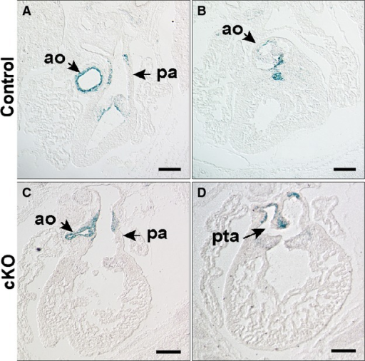 NCC fate map in an E15.5 embryo with Wnt1Cre mediated inactivation of Hif‐1α. NCC fate is mapped with histological detection of LacZ activity from the Rosa26 locus. Matched sections are from anterior to posterior. In control (A and B; Hif‐1αf/f; Wnt1Cre−) and cKO (C and D; Hif‐1αf/f; Wnt1Cre+) embryos, LacZ+ cells are present in the aorta, pulmonary artery and the semilunar valves. In the control embryo LacZ+ cells are evident in the rostral portion of the ventricular septum below the aortic valve (B). The outlet septum is absent in the cKO accounting for the outlet VSD. D, LacZ+ cells are observed in cKO in the abnormally positioned aortico‐pulmonic septum (arrow), which is incomplete resulting in PTA. Scale bars: 500 μm. Ao indicates aorta; cKO, conditional knock‐out; Hif, hypoxia‐inducible transcription factor; NCC, neural crest cells; pa, pulmonary artery; PTA, persistent truncus arteriosus; VSD, ventricular septal defect.