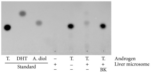 Representative TLC-image showing inhibition of rat liver microsomal 5α-reductase in testosterone metabolism by BK treatment. Testosterone (T.) was incubated at a final concentration of 3.5 μmol/L for 30 min in the presence or absence of rat liver microsomes (40 μg/mL) and the cofactors. Bokusoku (BK) was added at 30 μg/mL before starting the reaction. The androgens were extracted with ethyl acetate after the incubation and analyzed by TLC. All androgen standards were applied at 0.1 μg/μL/spot. DHT: dihydrotestosterone, A. diol: 5α-androstane-3α,17β-diol.