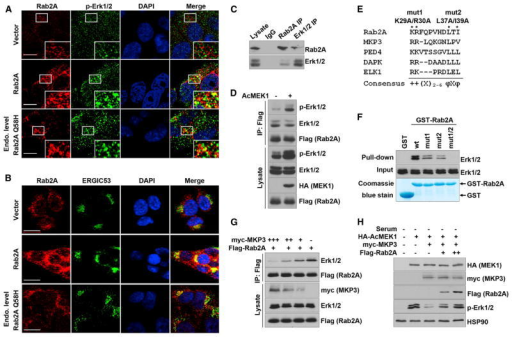 Rab2A Interacts with and Prevents Inactivation of Erk1/2 by MKP3(A) Overexpressed Rab2A and its Q58H mutant co-localized with p-Erk1/2. Stable HMLE cells were serum starved and then treated with 10 ng/ml EGF for 5 min. Scale bar represents 10 μm.(B) Rab2A and its Q58H mutant co-localized with ERGIC53. Scale bar represents 20 μm.(C) Reciprocal coIP of endogenous Rab2A with Erk1/2. Lysates of HMLE cells were immunoprecipitated with Rab2A or Erk1/2 antibodies, followed by western blot for Rab2A and Erk1/2, respectively.(D) Rab2A immunoprecipitated with total Erk1/2 and p-Erk1/2 in HEK293 cells co-transfected with Flag-Rab2A and constitutive activated MEK1 (AcMEK1).(E) The consensus Erk docking motifs were found in Rab2A and several other Erk binding partners. + and φ represent basic and hydrophobic amino acids, respectively. X represents any amino acids.(F) Mutations in the Erk docking motif in Rab2A impaired its binding to Erk1/2.(G) Rab2A and MKP3 competed to bind Erk1/2. Lysates of 293T cells transfected with decreasing doses of myc-MKP3 and a constant dose of Flag-Rab2A were immunoprecipitated with M2 (Flag) antibody, followed by western blot for Erk1/2 and Flag-Rab2A.(H) Rab2A competed with MKP3 and kept Erk1/2 in the phosphorylated status. 293T cells were transfected to express Rab2A, MKP3, and AcMEK1, which induced p-Erk1/2 in serum-starved cells and was largely reversed by Myc-MKP3 expression, whereas Flag-Rab2A expression dose-dependently restored Erk1/2 phosphorylation.See also Figures S4 and S5.