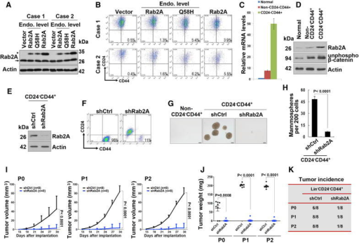 Rab2A and Its Q58H Mutant Endow BCSC Traits to Normal Primary Human MECs, whereas Silencing Rab2A Inhibits Primary Human BCSC Expansion and Tumorigenesis(A) Western blot showed lentivirus-mediated overexpression of Rab2A and Q58H mutant in two cases of human normal Lin− MECs. Arrowhead, exogenous Flag tagged protein; arrow, endogenous protein.(B) Rab2A or Rab2A Q58H mutant increased the CD24−CD44+ population in primary human MECs.(C) Real-time PCR showed that expression of Rab2A mRNA was markedly increased in the Lin−CD24−CD44+ population, compared to Lin−non-CD24−CD44+ or normal epithelial cells.(D) Expression of Rab2A and unphosphorylated β-catenin protein was markedly increased in Lin−CD24−CD44+ cells compared to Lin−non-CD24−CD44+ cells in human breast cancer tissue and those in normal breast tissue from the same patient.(E) Rab2A was knocked down in Lin−CD24−CD44+ cells sorted from human breast cancer tissue.(F) Rab2A KD in Lin−CD24−CD44+ breast cancer cells decreased the CD24−CD44+ population.(G and H) Rab2A KD in Lin−CD24−CD44+ breast cancer cells decreased mammosphere formation. Scale bar represents 100 μm.(I–K) Rab2A KD interfered with both tumor initiation and growth of primary BCSCs in vivo, as shown by tumor growth curve (I), tumor weights (J), and tumor incidence (K). 2,000 lentivirus-transduced Lin−CD24−CD44+ cells isolated from eight breast cancer patients were serially transplanted as xenografts into eight nude mice. P0, freshly isolated primary cells; P1, passage 1; P2, passage 2.In (C) and (H), error bars represent SD of three independent experiments. In (I) and (J), error bars represent SD of eight mice. See also Figure S6.