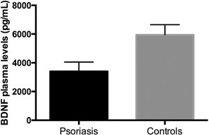 Brain-derived neurotrophic factor (BDNF) plasma levels in psoriasispatients (n=94) and controls (n=307). Data are reported as mean plasma BDNF and95%CI upper limit. P≤0.01, psoriasis patients compared to controls(t-test).
