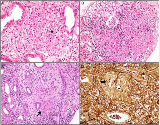 Renal biopsy showing interstitial granuloma composed of epithelioid histiocytes and occasional giant cells associated with variable inflammatory cell infiltrate. Necrosis (asterisk) seen occasionally in tubercular granuloma (A), is not a feature of sarcoidosis (B) and idiopathic granulomatous interstitial nephritis (arrow, C). Fungal granuloma showing aseptate hyphae within giant cells (arrow, D). [A—Hematoxylin and eosin ×400; B, C—hematoxylin and eosin ×200; D—silver methenamine ×400].