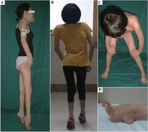 Images of the three patients with Emery-Dreifuss muscular dystrophy in the present study. (A and B) Patients 1 and 3 exhibited shoulder, elbow and ankle contractures, standing on toes, generalized muscle atrophy and limited neck mobility. (C) Patient 2, the daughter of Patient 1, exhibited a positive Gower's sign. (D) Patient 3 also exhibited Achilles tendon contracture.