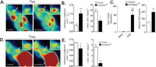 Loss of mTORC1 affects substrate partitioning in BAT.Control and Ad-RaptorKO mice were exposed to cold (10 °C) during 2 weeks and fasted for 6 hours before dynamic PET scan procedures. (A) Representative PET images of extraction coefficient uptake of the glucose analog 18FDG between 25–30 min post-injection (last frame). White arrows point to the interscapular BAT that is highlighted in the upper right insert. (B) (Left) Glucose extraction coefficient was determined using the Patlak graphical analysis following a 30-minutes dynamic scan. (Right) Total dynamic glucose uptake corrected for tissue weight was calculated from the extraction coefficient, BAT weight and plasma glucose levels (n = 4–5; mean +/− SEM; t-test; *P < 0.05; ***P < 0.001). (C) Gene expression (left) (n = 4; mean +/− SEM; Two-way ANOVA; ***P < 0.01 vs. Warm; ###P < 0.001 vs. Control) and circulating levels (right) of FGF21 (n = 8; mean +/− SEM; t-test; **P < 0.01). (D) Representative PET images of the uptake of the fatty acid analog 18FTHA between 25–30 min post-injection (last frame). White arrows point to the interscapular BAT that is highlighted in the upper right insert. (E) (Left) NEFA extraction coefficient was determined using the Patlak graphical analysis following a 30-minutes dynamic scan. (Right) Total dynamic NEFA uptake corrected for tissue weight was calculated from the extraction coefficient, BAT weight and plasma NEFA levels (n = 4; mean +/− SEM; t-test; *P < 0.05; ***P < 0.001).