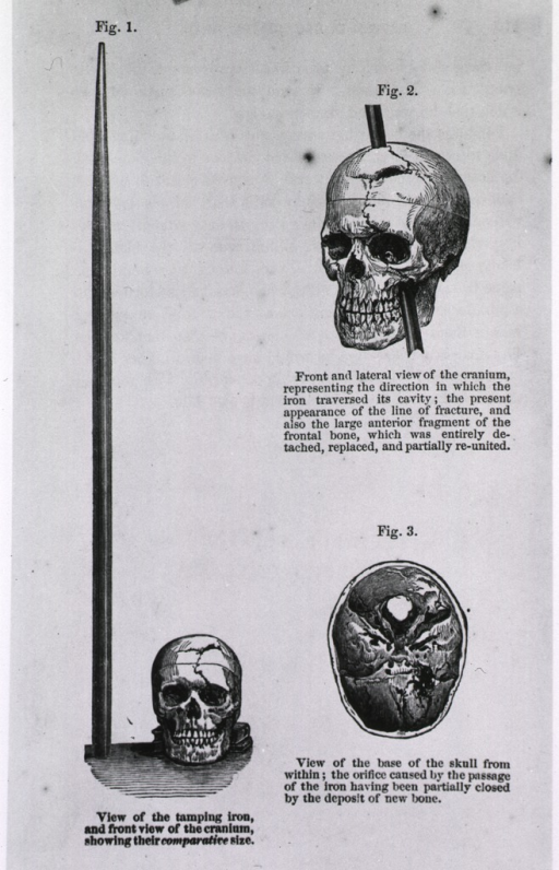 <p>Three views of the skull of Phineas Gage, one with the iron bar through it, fig. 1 shows comparative view of the skull and bar.</p>